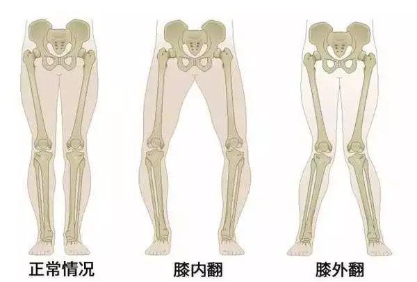 艺术体操训练对少儿体型体质的影响插图(11)