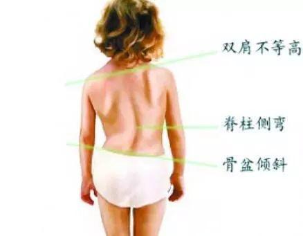 艺术体操训练对少儿体型体质的影响插图(8)